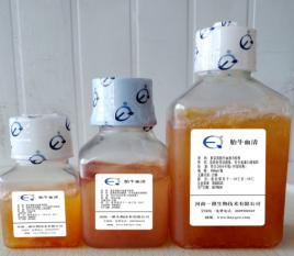 血清球蛋白的化验介绍以及临床意义
